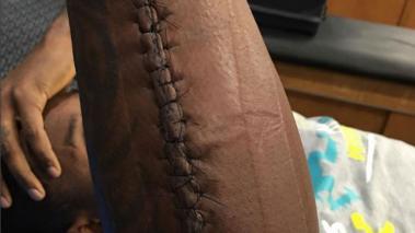 Thomas Davis y la imagen de su brazo.